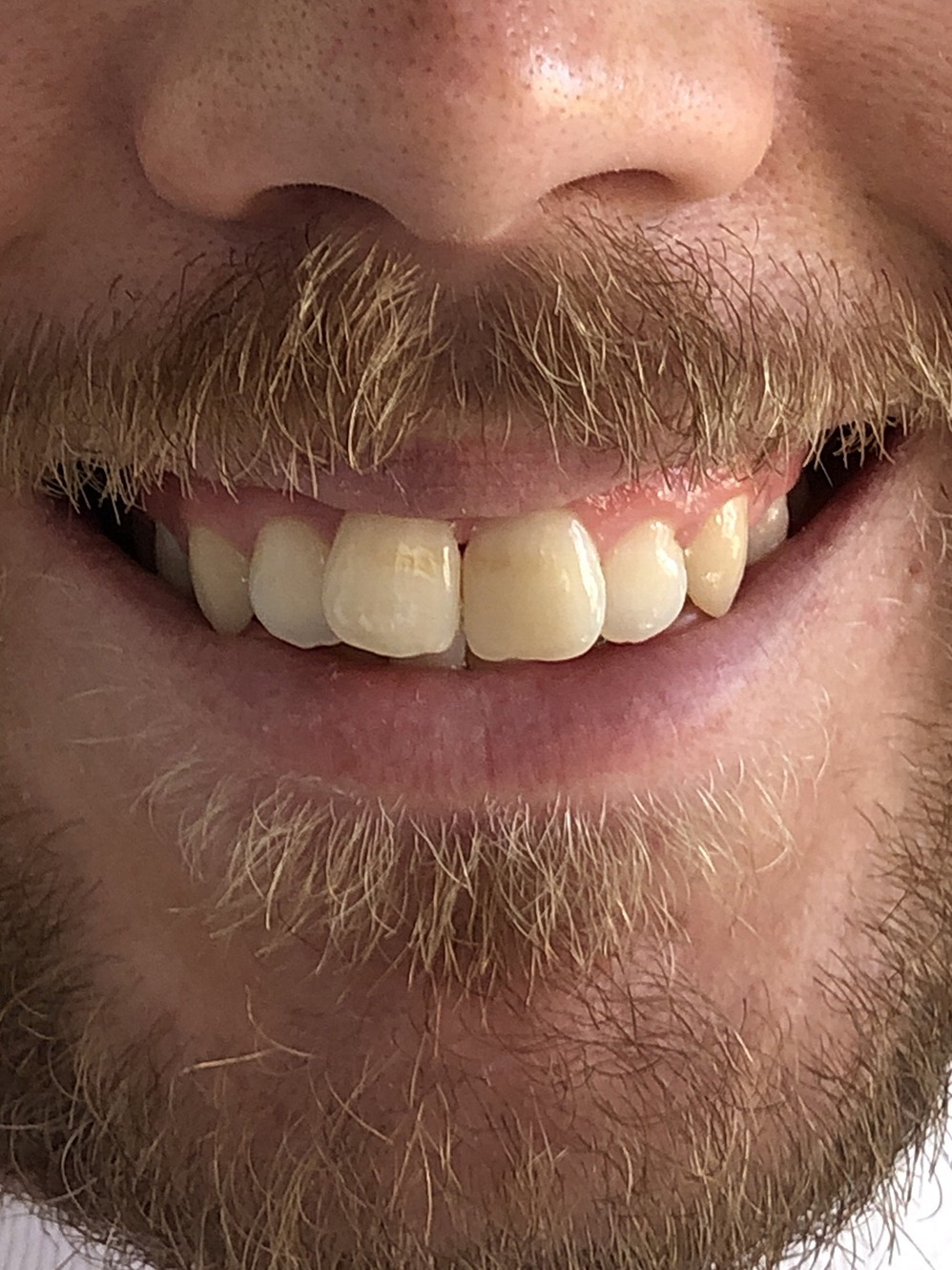 Dentist in Cambridge